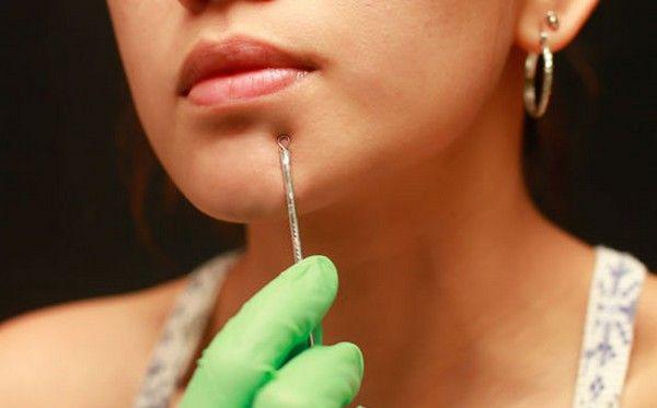 Гладкая кожа без посещения салона – как делать механическую чистку лица дома