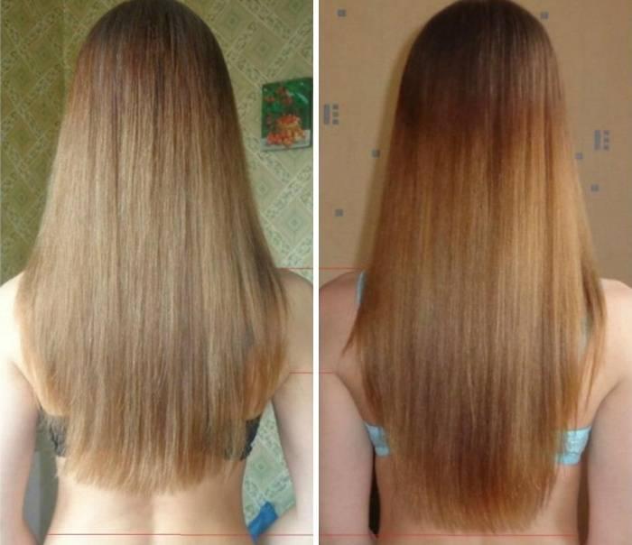 Как волосы сделать густыми за неделю 126