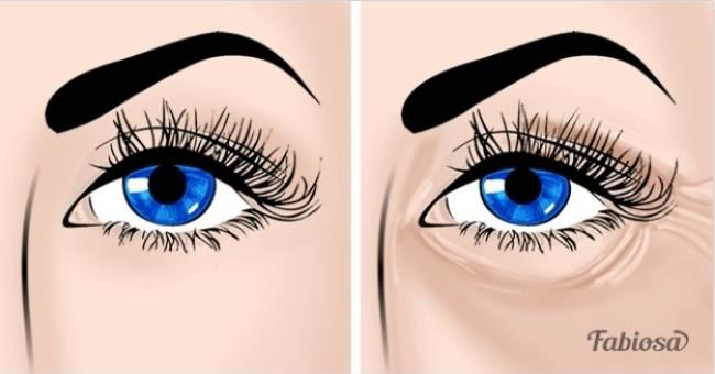 8 способов избавиться от «гусиных лапок» и сказать «Прощай!» морщинам вокруг глаз