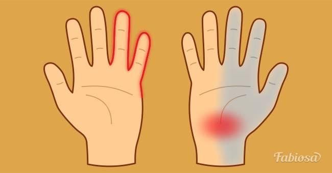 Покалывания, онемение, покраснения: 7 заболеваний, о которых могут рассказать ваши руки