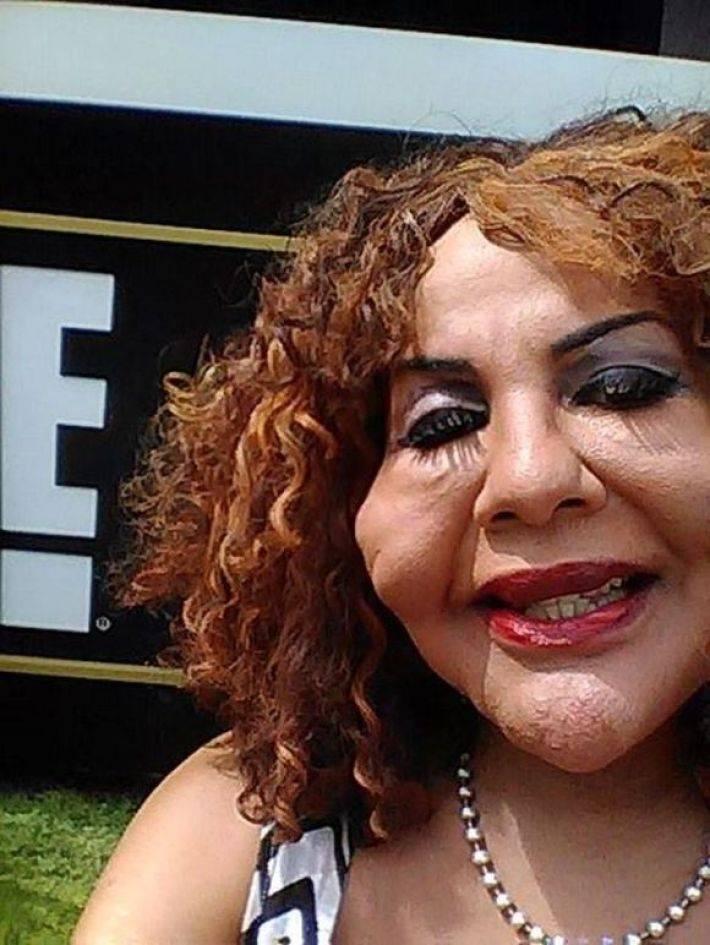 Пластический хирург-шарлатан ввел ей под кожу... цемент. Вот во что превратилось ее лицо