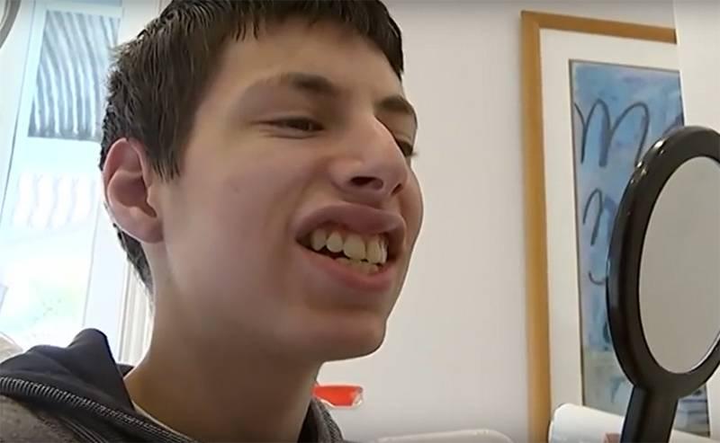"""""""Мальчик-кролик"""", над которым издевались в школе, благодаря неравнодушным людям, наконец может довольствоваться новой улыбкой"""