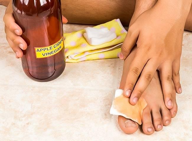11способов избавиться отнеприятного запаха ног