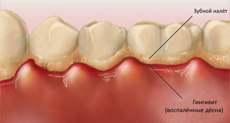 Как избавиться от зубного камня в домашних условиях. Рецепт очень прост!