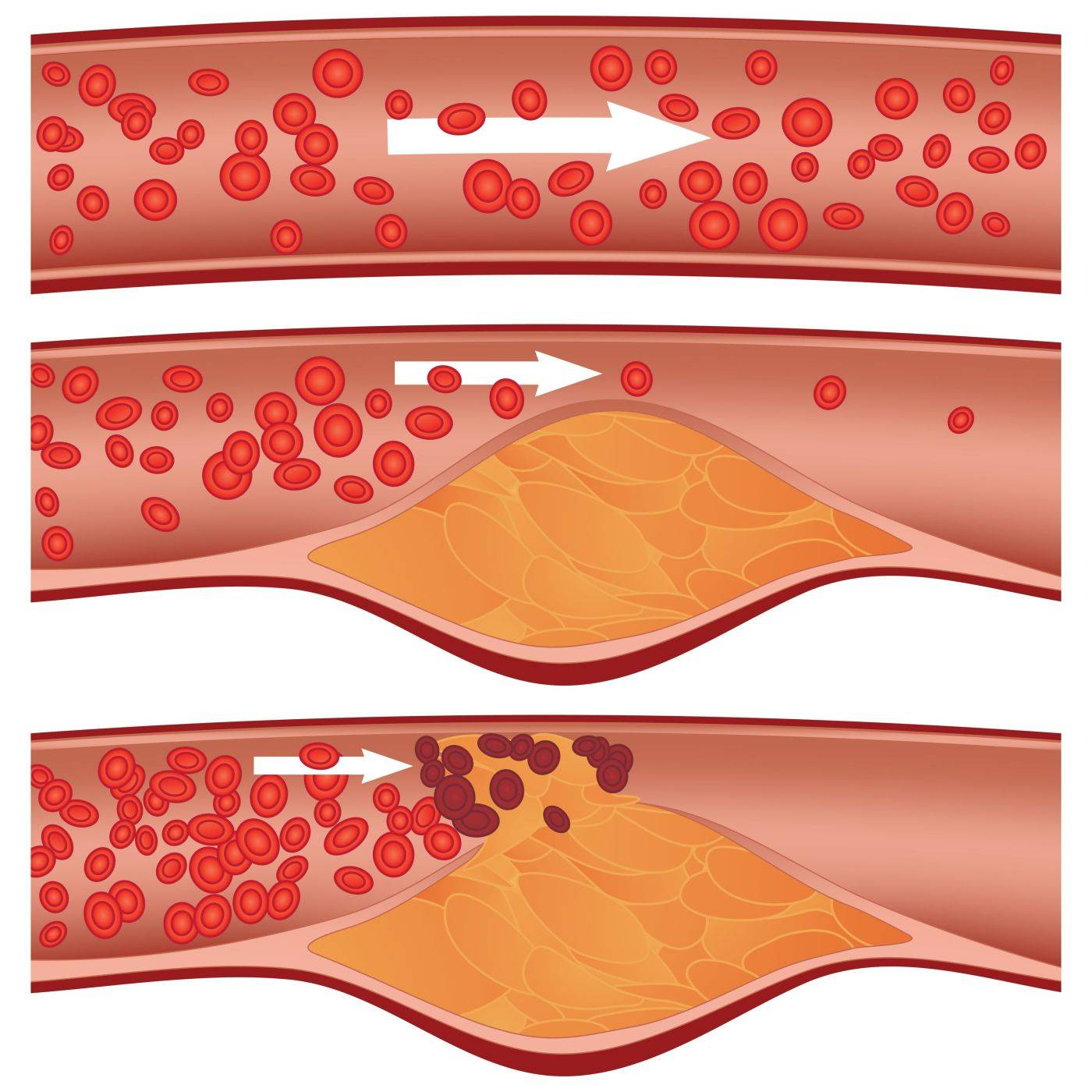 5 признаков забитых артерий