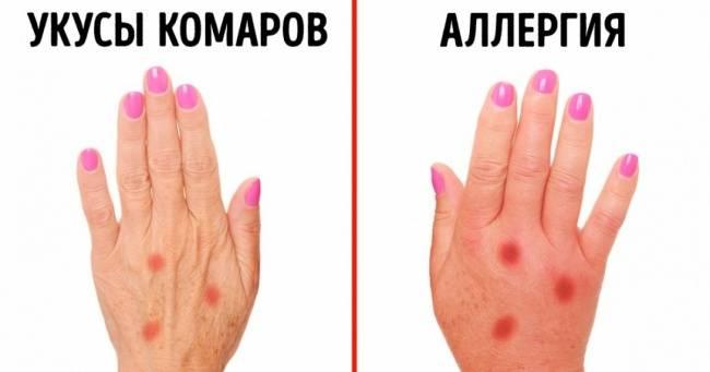 3признака, которые помогут распознать аллергию