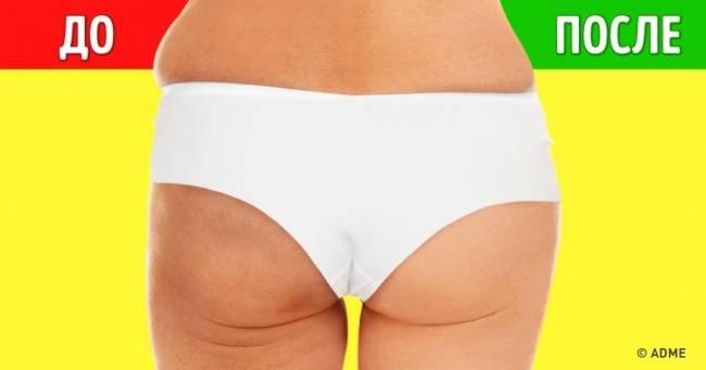 6упражнений, которые помогут уменьшить целлюлит за2недели