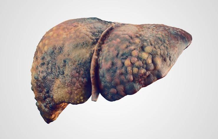 5 смертельно опасных заболеваний, кроме рака и болезней сердца