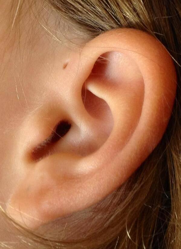 Дырочка возле уха. Что она означает и откуда берется?