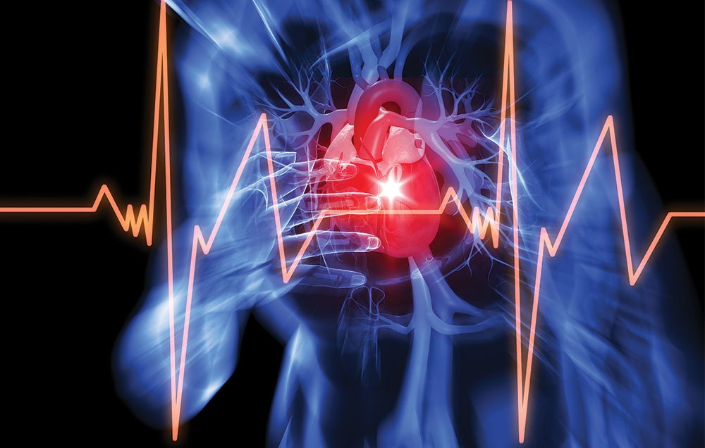 В 45% случаев инфаркт протекает бессимптомно. Вот что нужно о нем знать