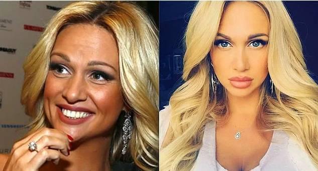 10 российских знаменитостей, которые слишком увлеклись фотошопом