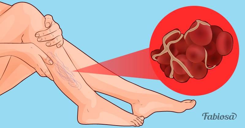 8 продуктов, которые разжижают кровь и предотвращают тромбоз