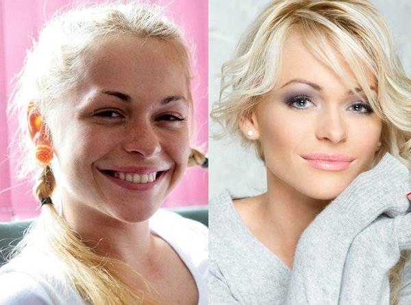 Что случилось с лицом и фигурой Анны Хилькевич: фото до и после пластики