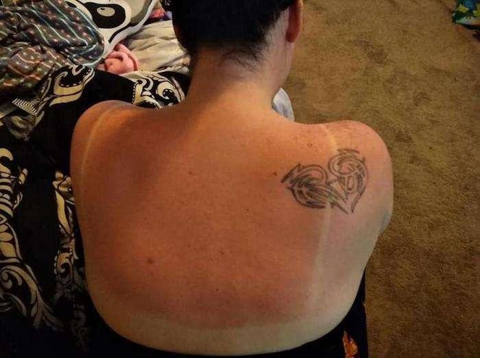 Как убрать солнечные ожоги буквально за 10 минут и не мазать спину сметаной
