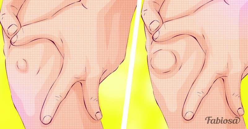 Что такое саркома? Опасная опухоль, которая практически не имеет симптомов