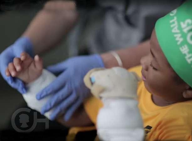 Мальчик с пересаженными руками вернулся к обычной жизни