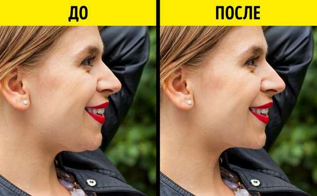 10странных косметических процедур, накоторые готовы пойти девушки ради красоты