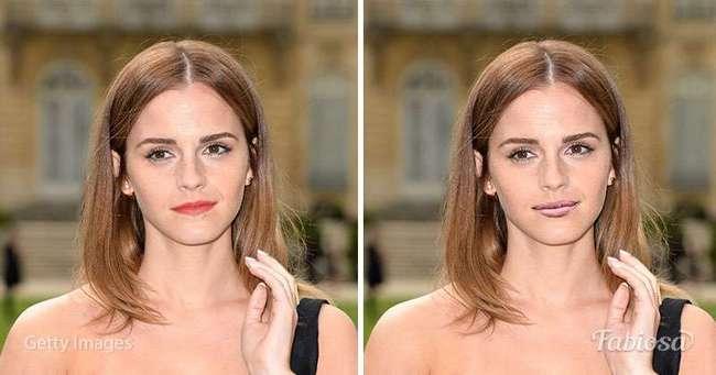 Всем ли идут полные губы? 10 знаменитых женщин, которым мы -примерили- улыбку Анджелины Джоли