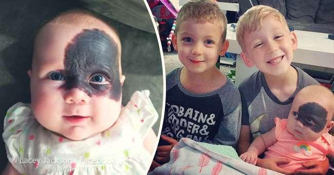 Эта девочка родилась с огромным пятном на лице, но родители не спешат его удалять