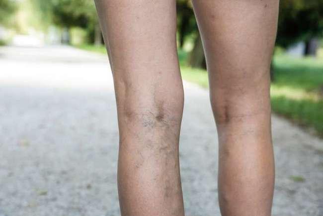 """6 натуральных средств, которые помогут вам избавиться от варикоза и """"паучьих"""" вен на ногах"""