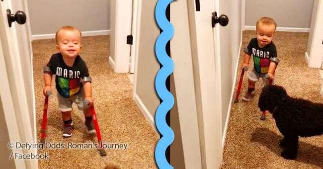 Этот 2-летний мальчик начал ходить, несмотря на расщепление позвоночника и прогнозы врачей