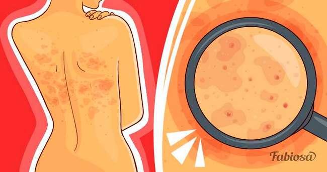 Что следует знать про опоясывающий лишай: причины, симптомы и что делать, если он появился у вас