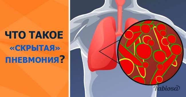 «Скрытое» воспаление легких: как вовремя распознать эту коварную болезнь?