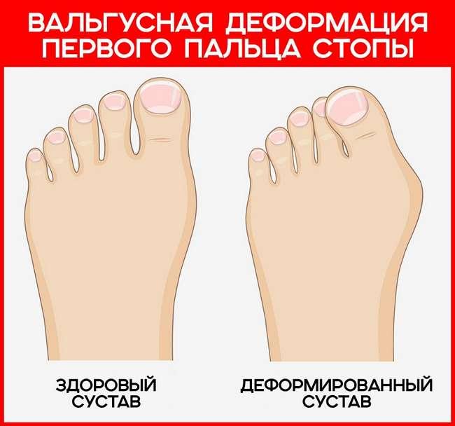 Болят косточки на пальцах ног