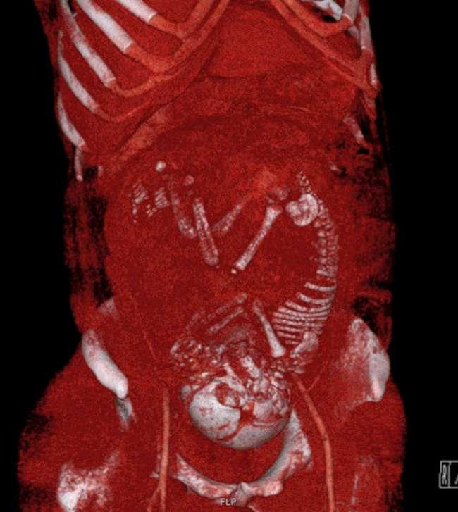 16снимков человеческого тела, которые нельзя сделать обычным фотоаппаратом