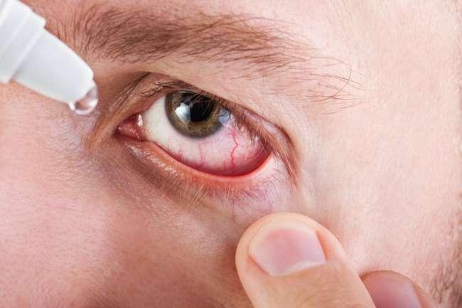 «Красный глаз»: причины возникновения заболевания