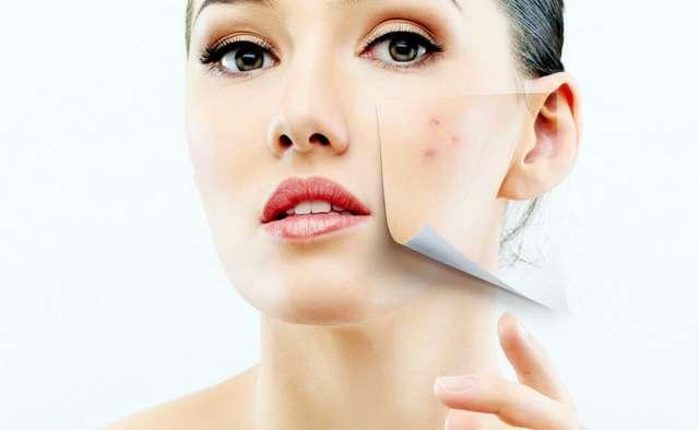 Лучшие средства для проблемной кожи лица