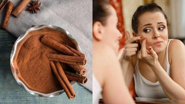 Корица вместо аптечки и косметички: полезные свойства специи