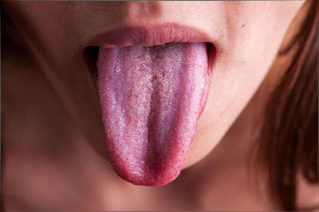 Дурное дыхание: в чем причина плохого запаха изо рта и как его победить