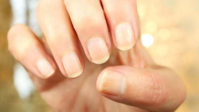 Как бороться с проблемными ногтями: 5 главных советов