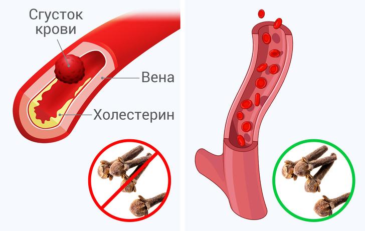 Что произойдет свашим телом, если выбудете съедать по2бутона гвоздики вдень