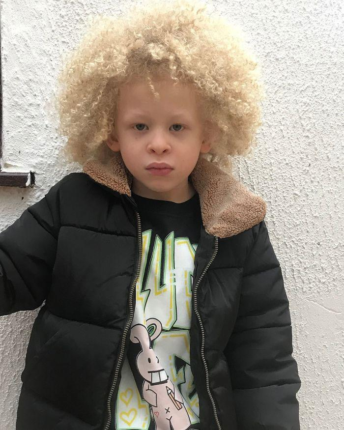 Женщина опубликовала фото своего сына-альбиноса в Сети, и он стал моделью