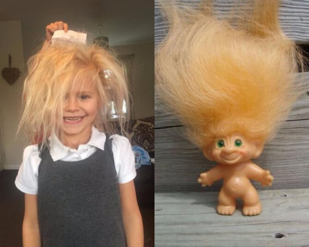 Синдром нечесаных волос: у маленькой девочки прическа как у троля