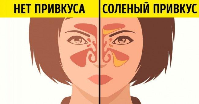 7 случаев, когда изменение вкусовых ощущений говорит об опасном заболевании