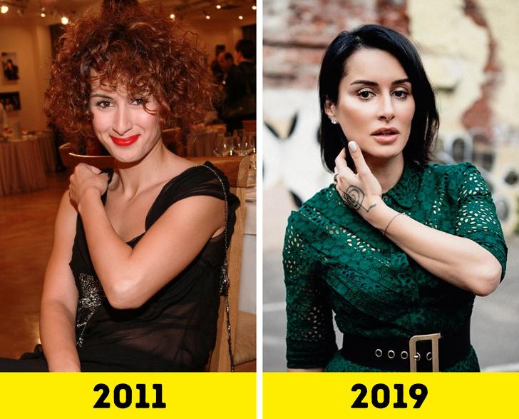 20 российских звезд, которые поработали над внешностью и стали выглядеть моложе