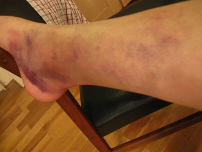 Лечение гематом на ногах