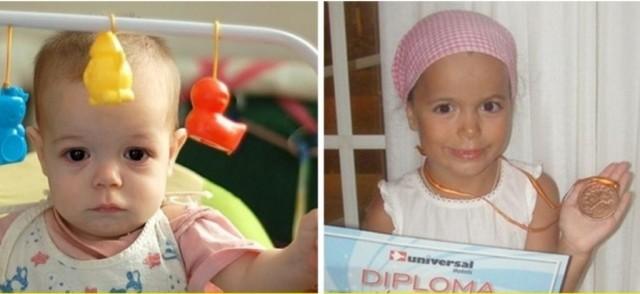 Фотографии детей до и после усыновления