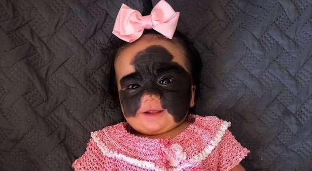 Мама «девочки смаской бэтмена» показала первые результаты операции вРоссии